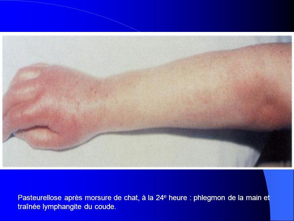 Pasteurellose après morsure de chat, à la 24 e heure : phlegmon de la main et traînée lymphangite du coude.