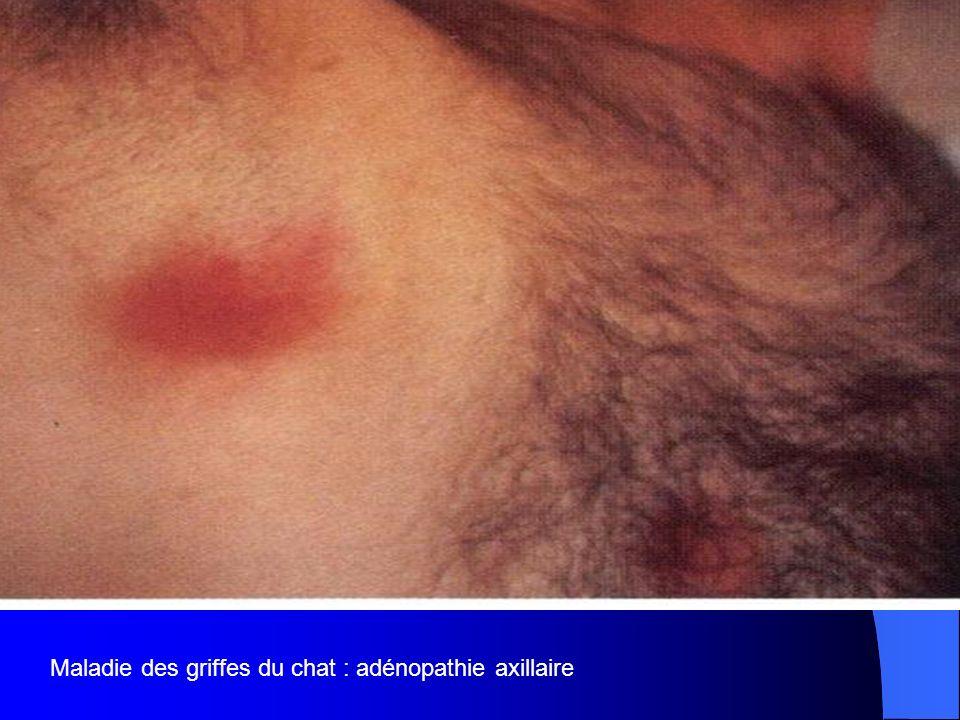 Maladie des griffes du chat : adénopathie axillaire