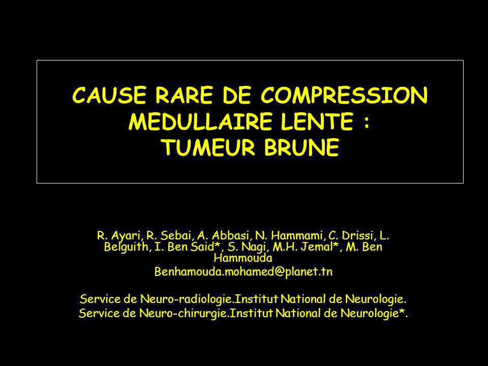 CAUSE RARE DE COMPRESSION MEDULLAIRE LENTE : TUMEUR BRUNE R.