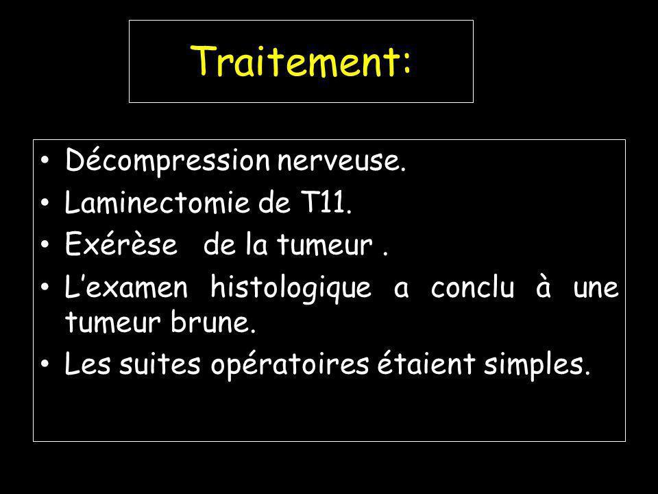 Traitement: Décompression nerveuse.Laminectomie de T11.