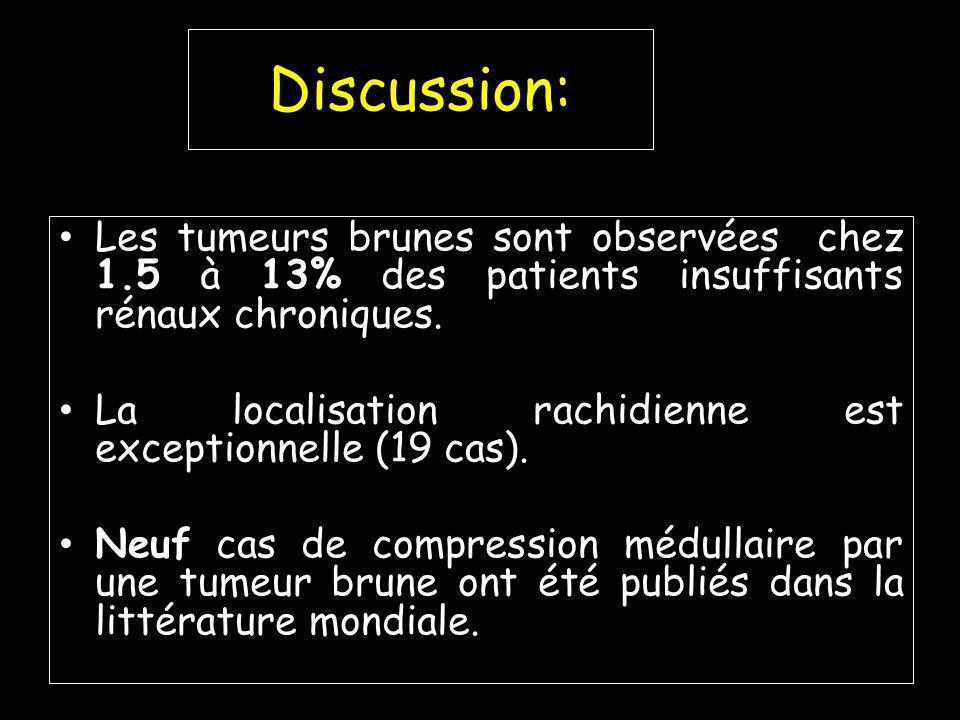 Discussion: Les tumeurs brunes sont observées chez 1.5 à 13% des patients insuffisants rénaux chroniques.