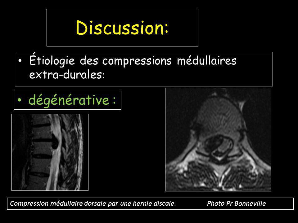 Discussion: Étiologie des compressions médullaires extra-durales : dégénérative : Compression médullaire dorsale par une hernie discale.