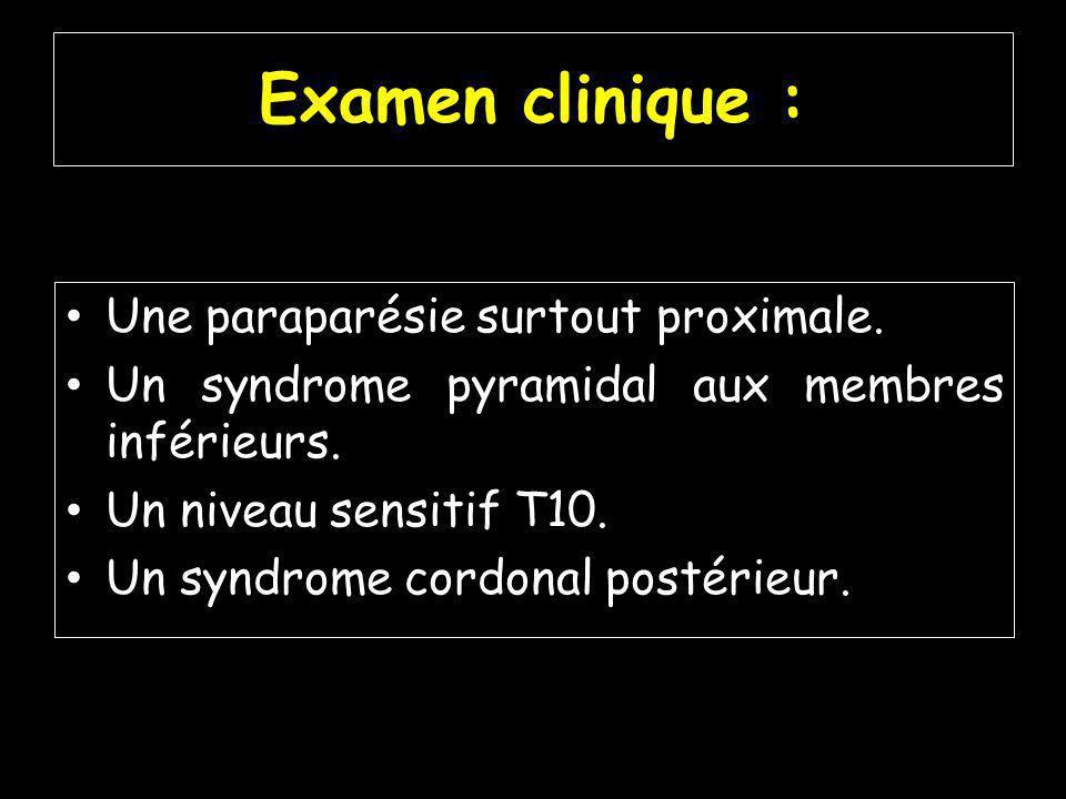 Examen clinique : Une paraparésie surtout proximale.