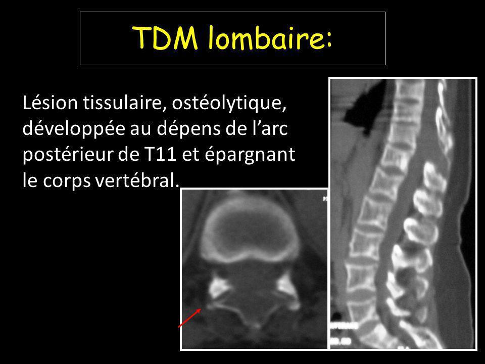 TDM lombaire: Lésion tissulaire, ostéolytique, développée au dépens de larc postérieur de T11 et épargnant le corps vertébral.