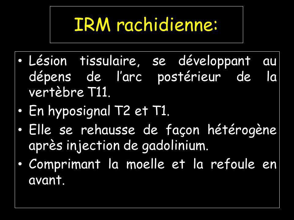 IRM rachidienne: Lésion tissulaire, se développant au dépens de larc postérieur de la vertèbre T11.