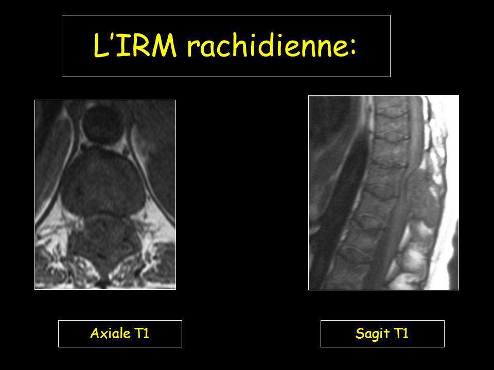 LIRM rachidienne: Axiale T1Sagit T1