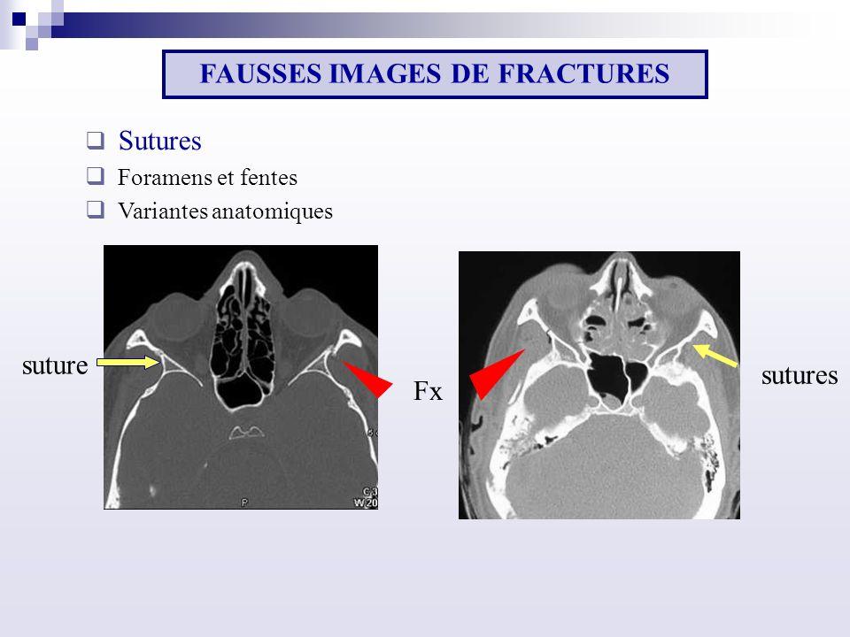 sutures FAUSSES IMAGES DE FRACTURES Sutures Foramens et fentes Variantes anatomiques Fx suture