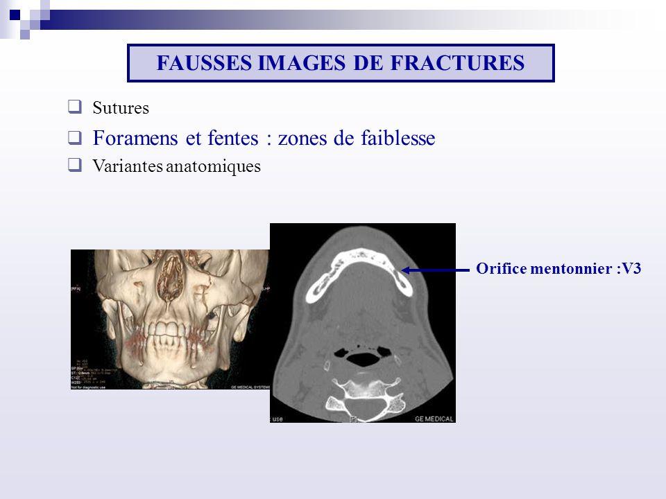 Sutures Foramens et fentes : zones de faiblesse Variantes anatomiques FAUSSES IMAGES DE FRACTURES Orifice mentonnier :V3