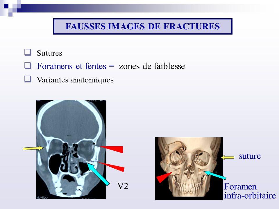 suture Foramen infra-orbitaire V2 FAUSSES IMAGES DE FRACTURES Sutures Foramens et fentes = zones de faiblesse Variantes anatomiques