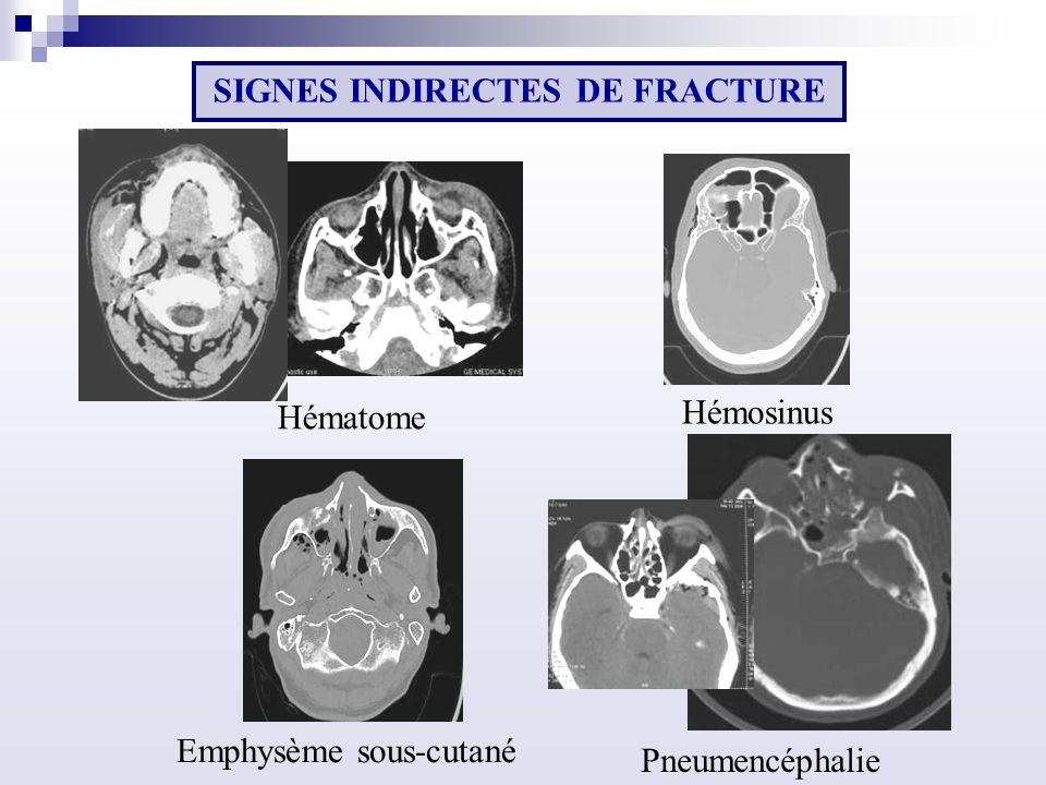 Emphysème sous-cutané Pneumencéphalie Hématome Hémosinus SIGNES INDIRECTES DE FRACTURE