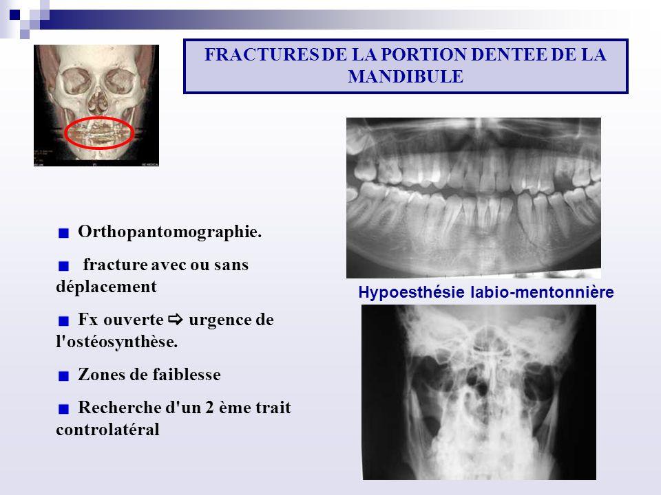 Orthopantomographie.fracture avec ou sans déplacement Fx ouverte urgence de l ostéosynthèse.