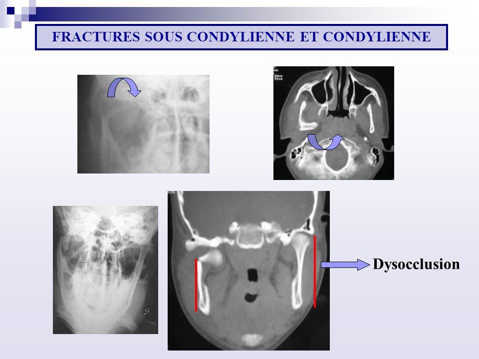Dysocclusion FRACTURES SOUS CONDYLIENNE ET CONDYLIENNE