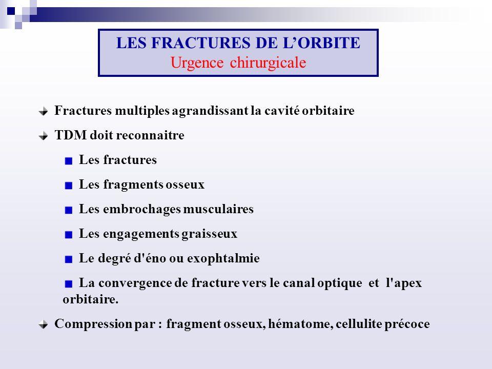 Fractures multiples agrandissant la cavité orbitaire TDM doit reconnaitre Les fractures Les fragments osseux Les embrochages musculaires Les engagements graisseux Le degré d éno ou exophtalmie La convergence de fracture vers le canal optique et l apex orbitaire.