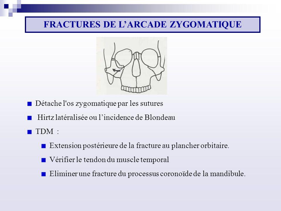 Détache l os zygomatique par les sutures Hirtz latéralisée ou lincidence de Blondeau TDM : Extension postérieure de la fracture au plancher orbitaire.
