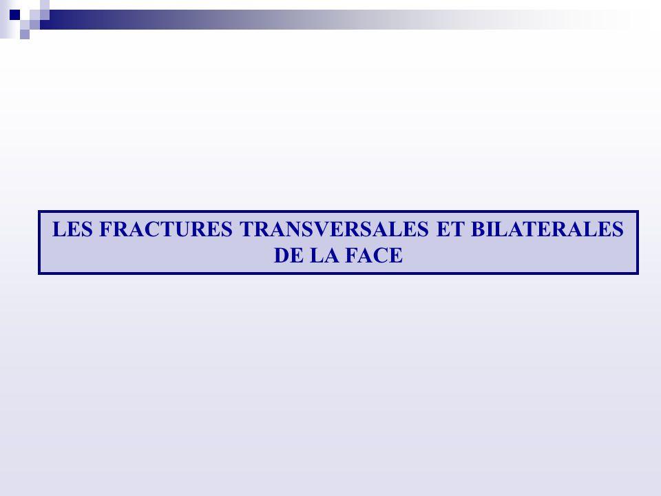 LES FRACTURES TRANSVERSALES ET BILATERALES DE LA FACE