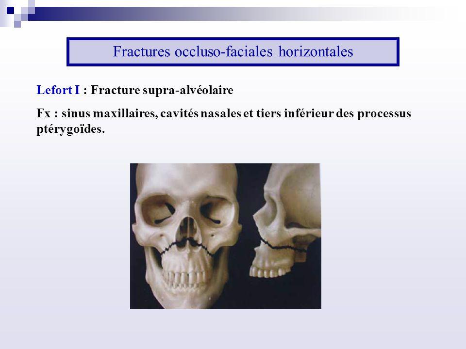 Fractures occluso-faciales horizontales Lefort I : Fracture supra-alvéolaire Fx : sinus maxillaires, cavités nasales et tiers inférieur des processus ptérygoïdes.