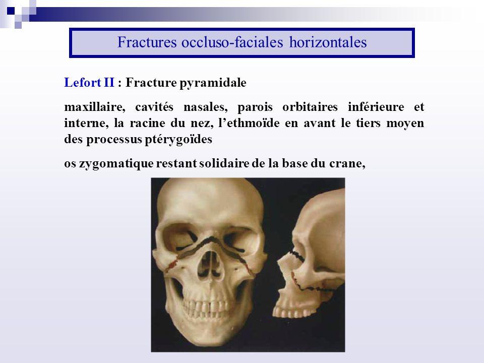 Fractures occluso-faciales horizontales Lefort II : Fracture pyramidale maxillaire, cavités nasales, parois orbitaires inférieure et interne, la racine du nez, lethmoïde en avant le tiers moyen des processus ptérygoïdes os zygomatique restant solidaire de la base du crane,