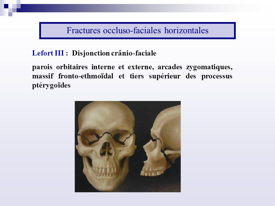 Fractures occluso-faciales horizontales Lefort III : Disjonction crânio-faciale parois orbitaires interne et externe, arcades zygomatiques, massif fronto-ethmoïdal et tiers supérieur des processus ptérygoïdes