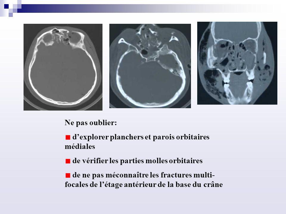 Ne pas oublier: dexplorer planchers et parois orbitaires médiales de vérifier les parties molles orbitaires de ne pas méconnaître les fractures multi- focales de létage antérieur de la base du crâne