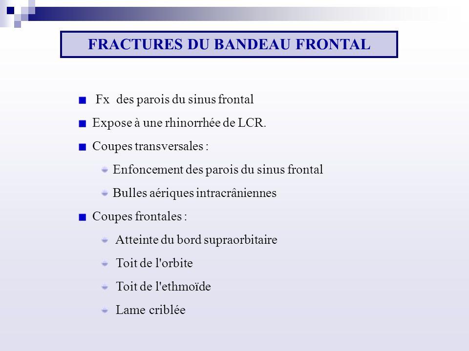 Fx des parois du sinus frontal Expose à une rhinorrhée de LCR.