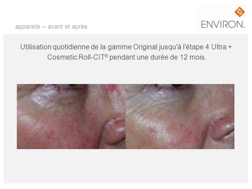 appareils – avant et après Utilisation quotidienne de la gamme Original jusqu'à l'étape 4 Ultra + Cosmetic Roll-CIT ® pendant une durée de 12 mois.