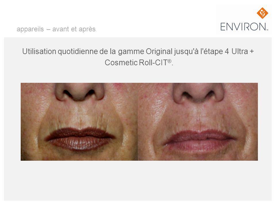 appareils – avant et après Utilisation quotidienne de la gamme Original jusqu'à l'étape 4 Ultra + Cosmetic Roll-CIT ®.
