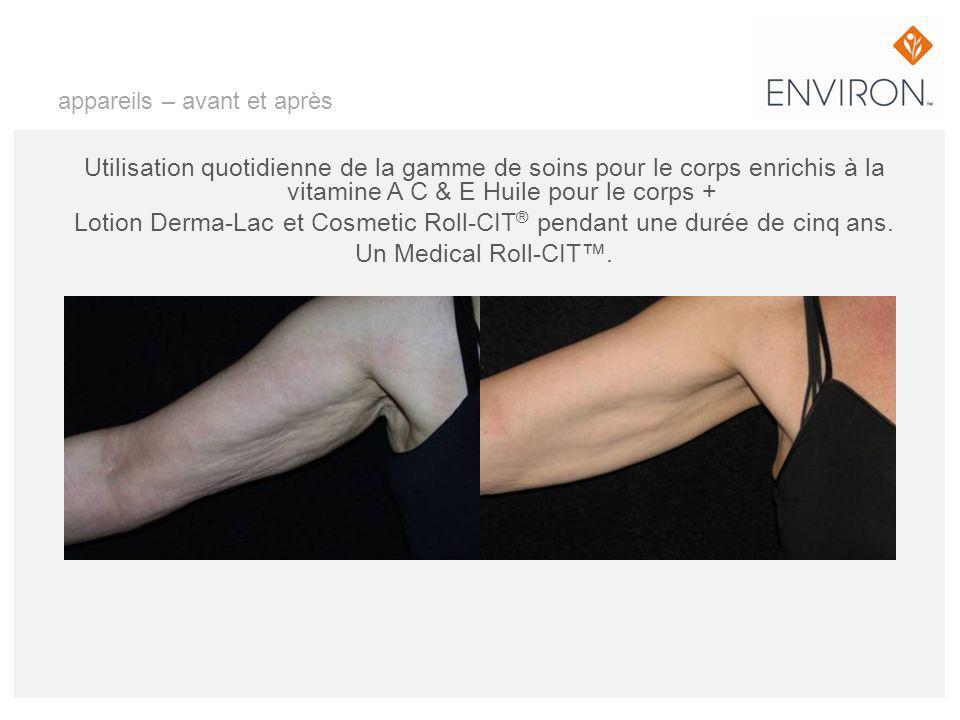 appareils – avant et après Utilisation quotidienne de la gamme de soins pour le corps enrichis à la vitamine A C & E Huile pour le corps + Lotion Derm