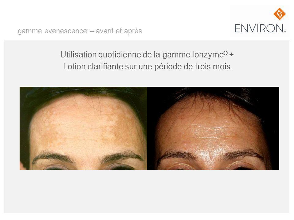 gamme evenescence – avant et après Utilisation quotidienne de la gamme Ionzyme ® + Lotion clarifiante sur une période de trois mois.