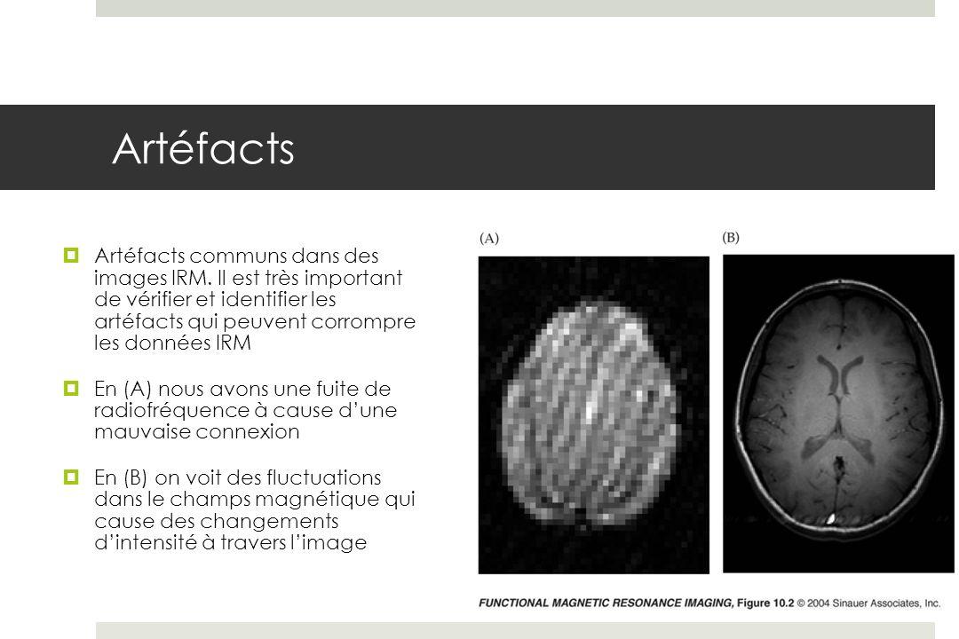 Artéfacts Artéfacts communs dans des images IRM.