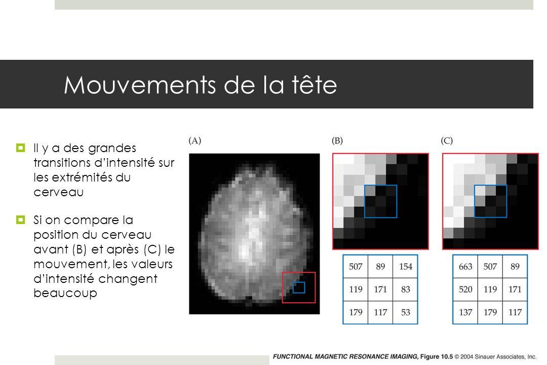 Mouvements de la tête Il y a des grandes transitions dintensité sur les extrémités du cerveau Si on compare la position du cerveau avant (B) et après (C) le mouvement, les valeurs dintensité changent beaucoup