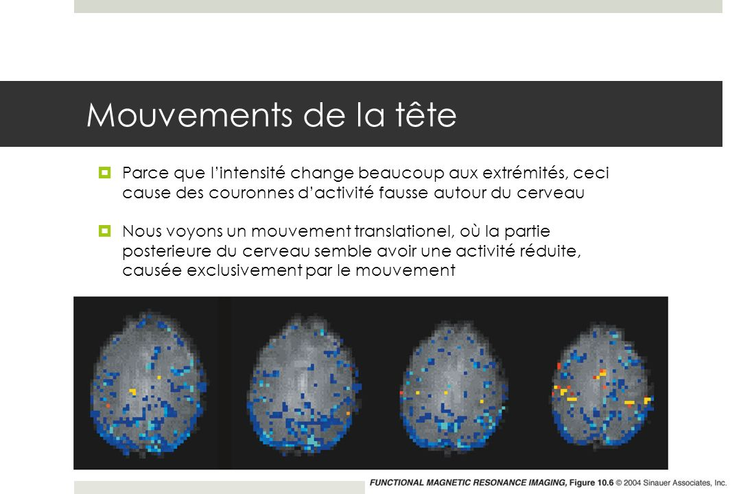Mouvements de la tête Parce que lintensité change beaucoup aux extrémités, ceci cause des couronnes dactivité fausse autour du cerveau Nous voyons un mouvement translationel, où la partie posterieure du cerveau semble avoir une activité réduite, causée exclusivement par le mouvement