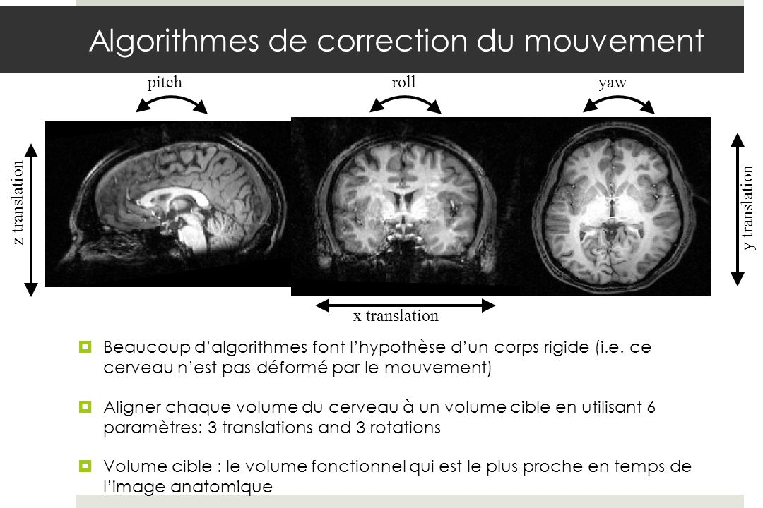 x translation z translation y translation pitchroll yaw Algorithmes de correction du mouvement Beaucoup dalgorithmes font lhypothèse dun corps rigide (i.e.