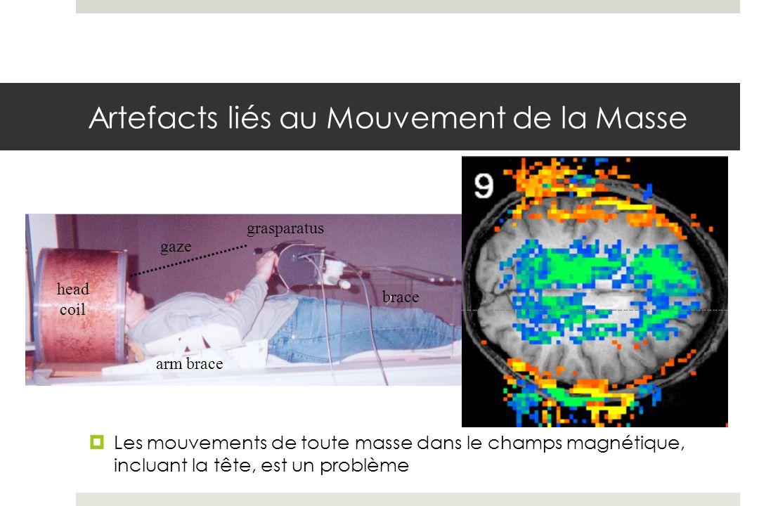 Artefacts liés au Mouvement de la Masse Les mouvements de toute masse dans le champs magnétique, incluant la tête, est un problème head coil arm brace gaze grasparatus brace