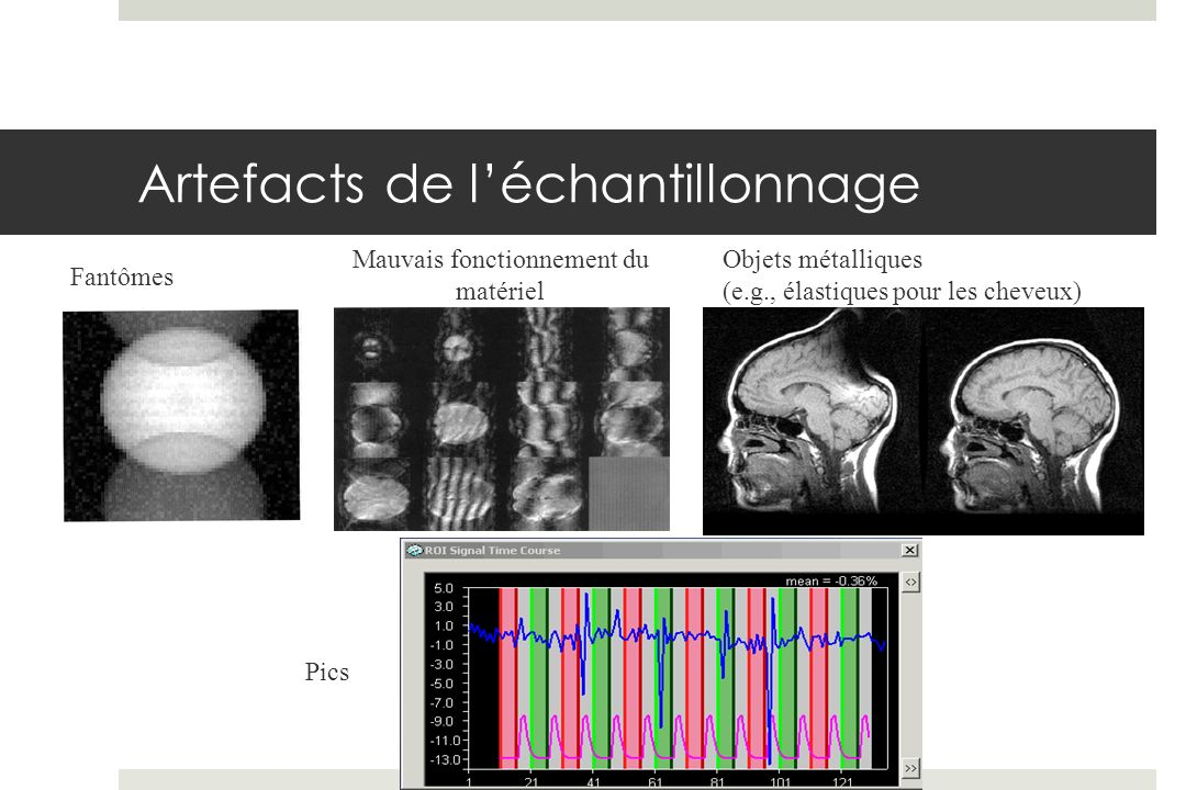 Source des diapos Remerciements: Cécile Madjar Kristina Martinu Huettel, Song & McCarthy, 2004, Functional Magnetic Resonance Imaging Dr.