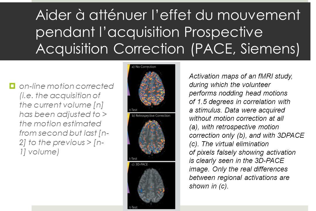 Aider à atténuer leffet du mouvement pendant lacquisition Prospective Acquisition Correction (PACE, Siemens) on-line motion corrected (i.e.