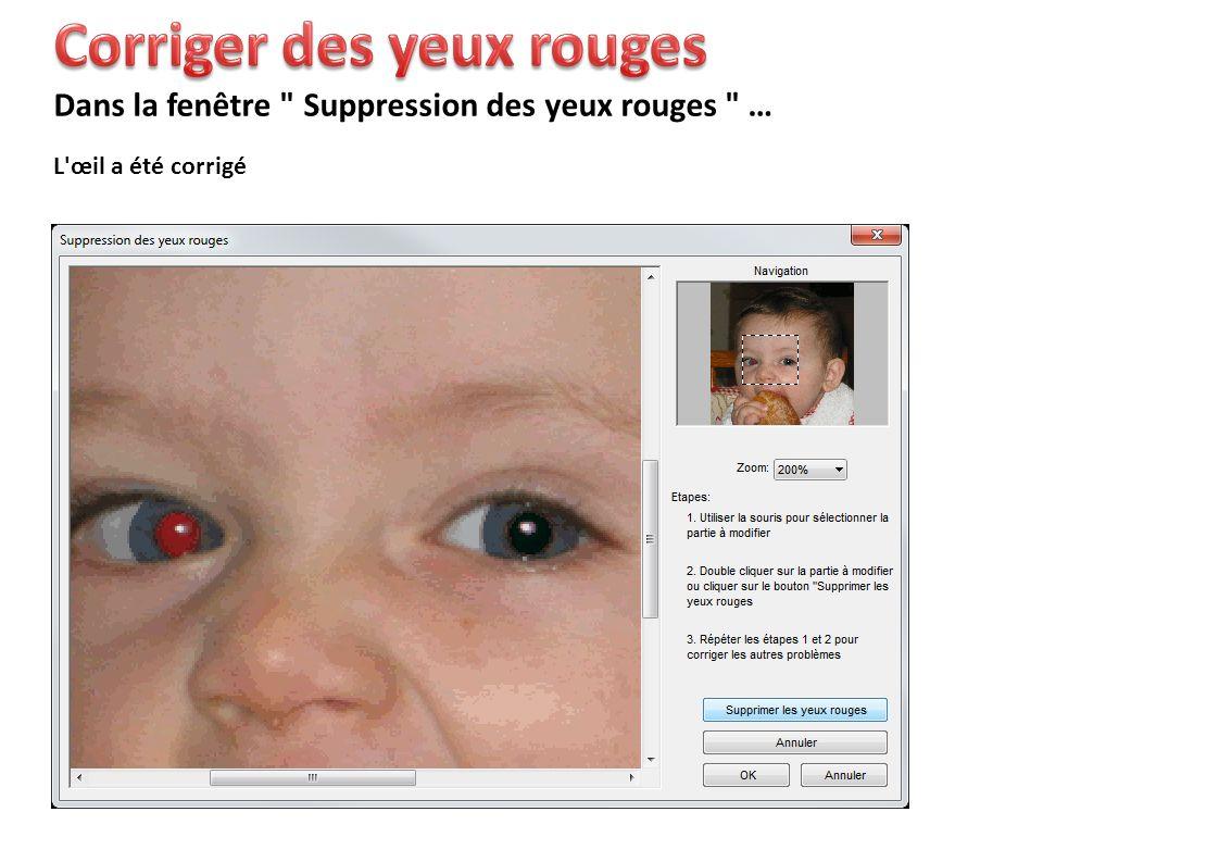 L œil a été corrigé Dans la fenêtre Suppression des yeux rouges …