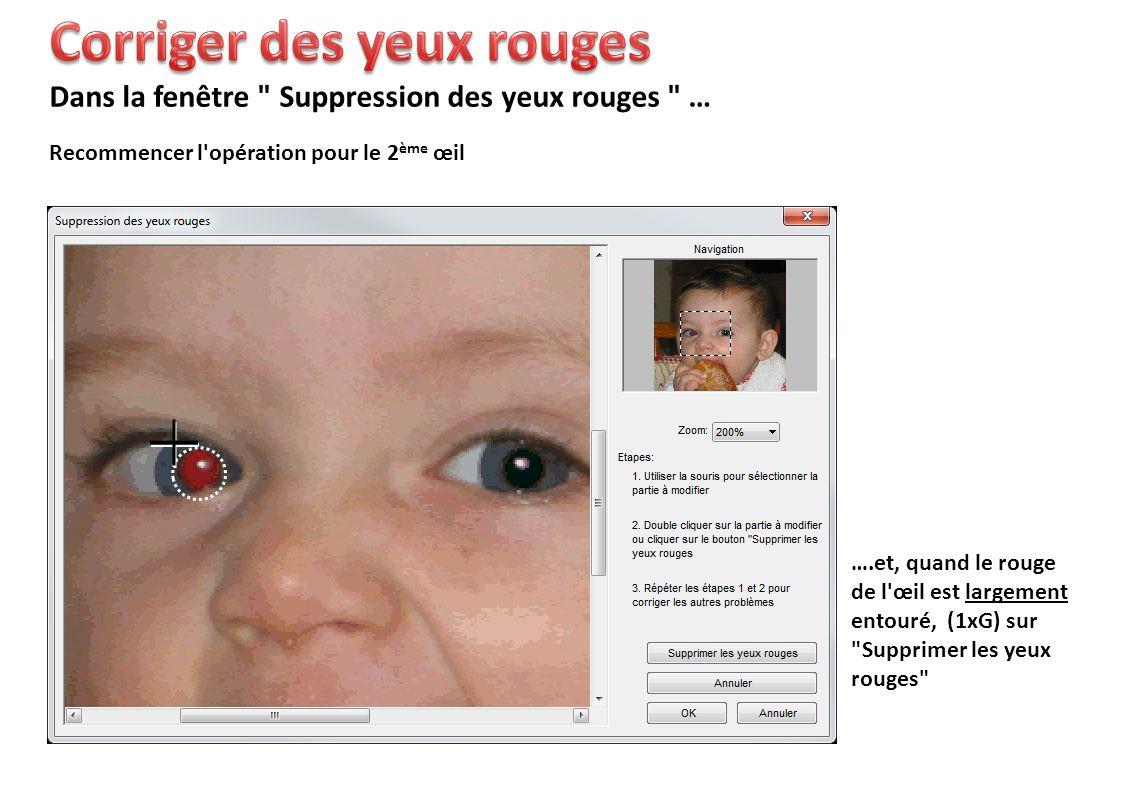 Recommencer l opération pour le 2 ème œil Dans la fenêtre Suppression des yeux rouges … ….et, quand le rouge de l œil est largement entouré, (1xG) sur Supprimer les yeux rouges
