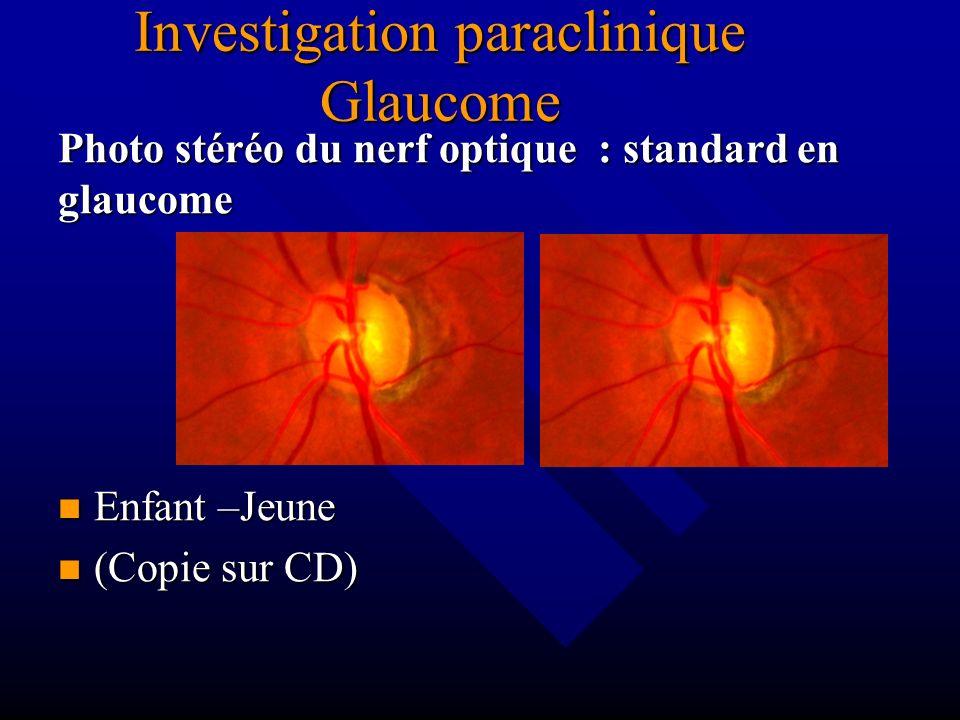 Photo stéréo du nerf optique : standard en glaucome Enfant –Jeune (Copie sur CD) Investigation paraclinique Glaucome