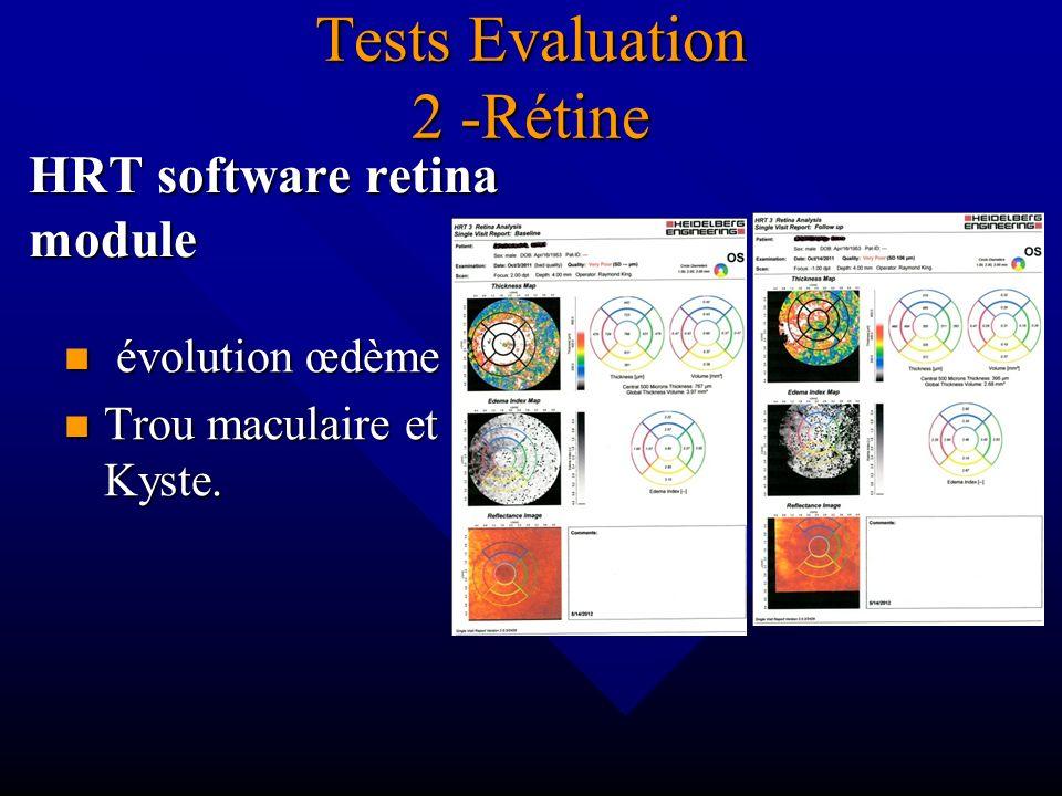 Tests Evaluation 2 -Rétine HRT software retina module évolution œdème Trou maculaire et Kyste.
