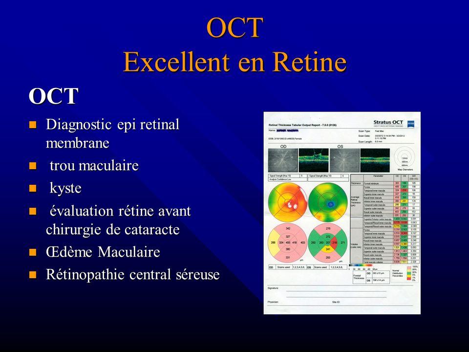 OCT Excellent en Retine OCT Diagnostic epi retinal membrane trou maculaire kyste évaluation rétine avant chirurgie de cataracte Œdème Maculaire Rétino