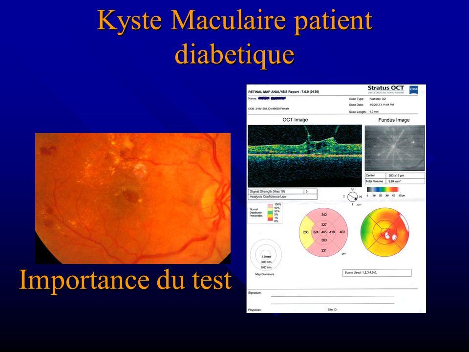 Kyste Maculaire patient diabetique Importance du test