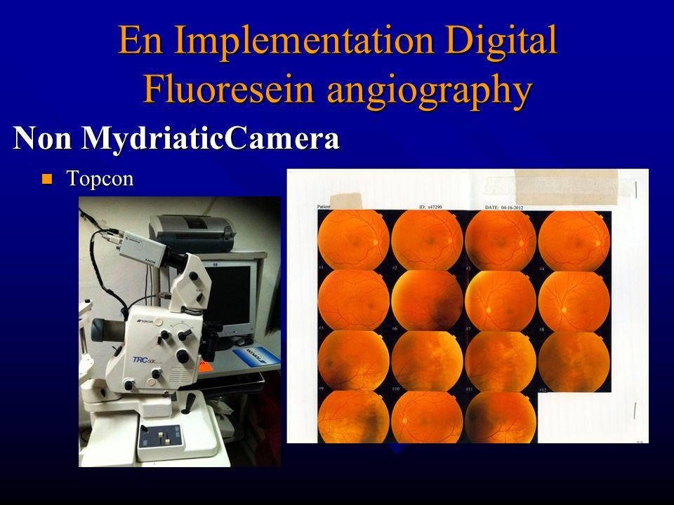En Implementation Digital Fluoresein angiography Non MydriaticCamera Topcon