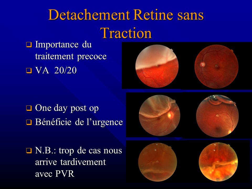 Detachement Retine sans Traction Importance du traitement precoce Importance du traitement precoce VA 20/20 VA 20/20 One day post op One day post op B