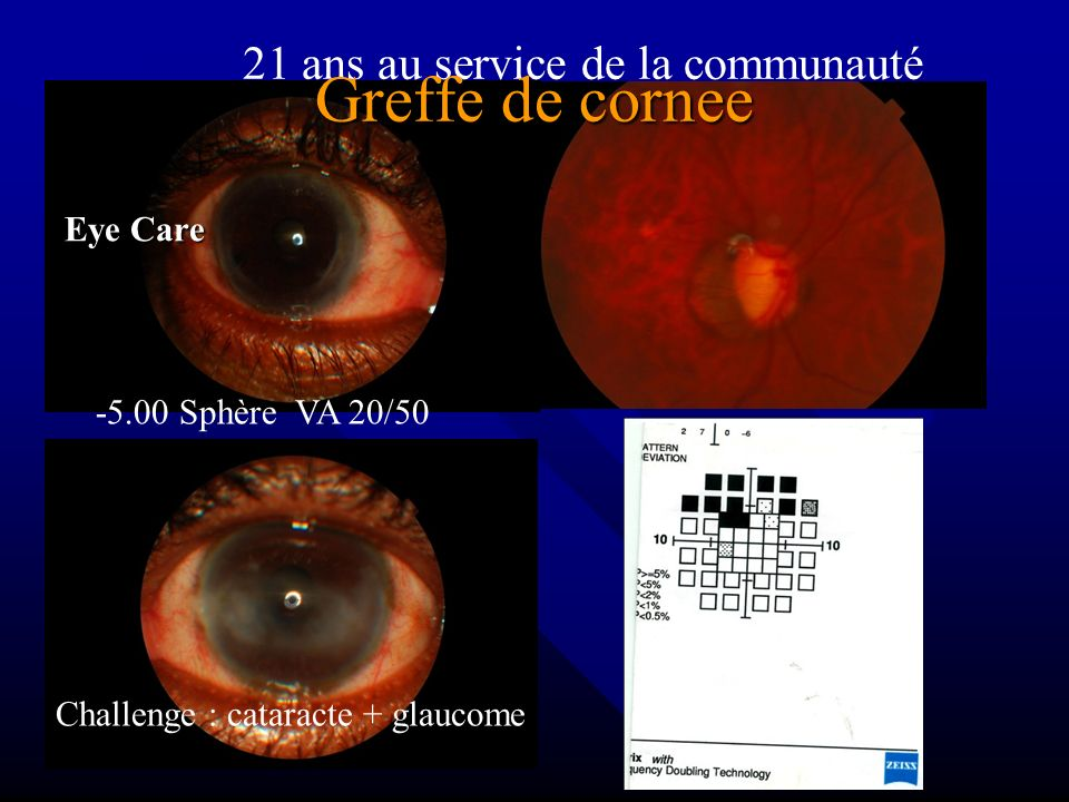COOPERATION du Centre Medical avec tous les Secteurs Dr Olivier Cap Haitien Peters Anomaly Only eye Cataract to do Need perfect instrument