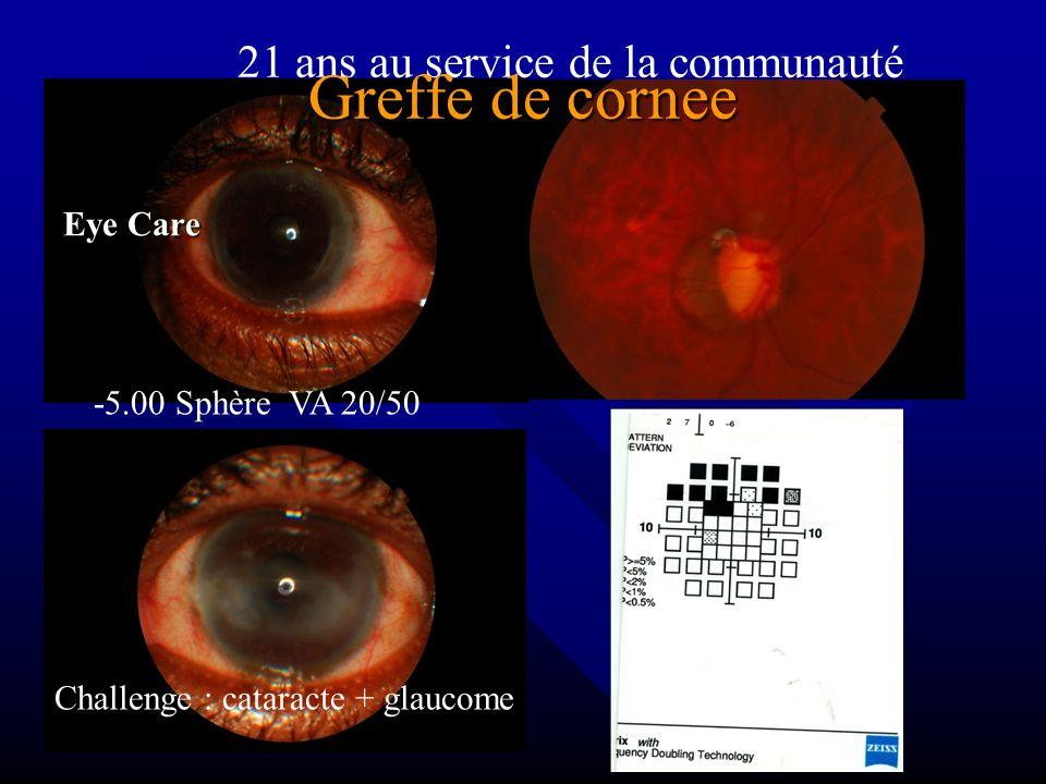 -5.00 Sphère VA 20/50 21 ans au service de la communauté Greffe de cornee Greffe de cornee Eye Care Challenge : cataracte + glaucome
