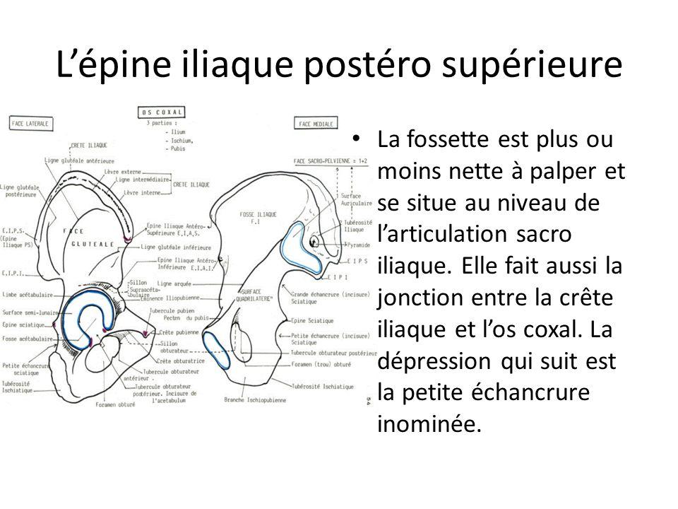 Lépine iliaque postéro supérieure La fossette est plus ou moins nette à palper et se situe au niveau de larticulation sacro iliaque. Elle fait aussi l