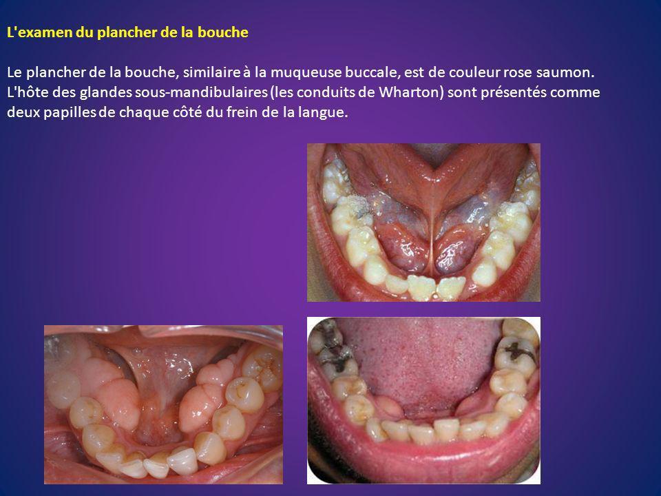 L'examen du plancher de la bouche Le plancher de la bouche, similaire à la muqueuse buccale, est de couleur rose saumon. L'hôte des glandes sous-mandi