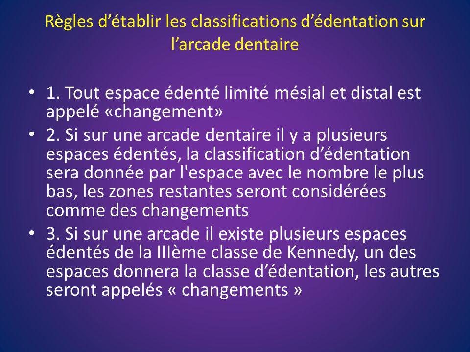 Règles détablir les classifications dédentation sur larcade dentaire 1. Tout espace édenté limité mésial et distal est appelé «changement» 2. Si sur u