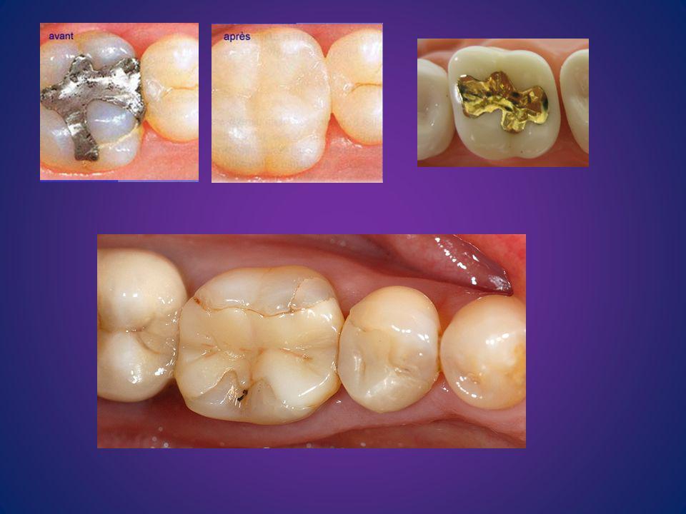 Si un dent est absente on examinera l espace crée par cette absence du dent, l espace qui est appelé espace édenté (EE).