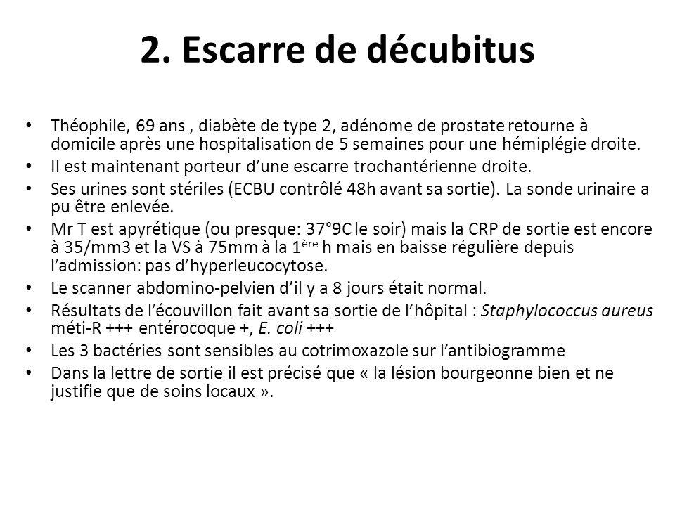 2. Escarre de décubitus Théophile, 69 ans, diabète de type 2, adénome de prostate retourne à domicile après une hospitalisation de 5 semaines pour une